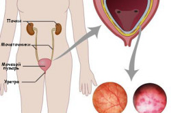 Сравнение здорового мочевого пузыря и цистита