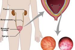 Мочевой пузырь в норме и при цистите