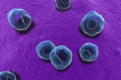 Хламидиоз  -причина развития лейкоплакии мочевого пузыря