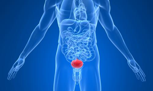 Воспаление мочевого пузыря под воздействием инфекций