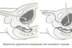 Цистолитотомия