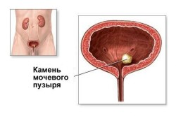 Выявление мочекаменной болезни при проведении УЗИ
