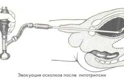 Принцип трансуретральной цистолитолапаксии