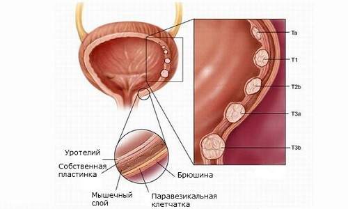 Схема лейкоплакии мочевого пузыря