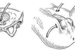 Процедура промывания мочевого пузыря через цистостому