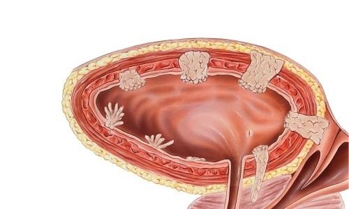 Злокачественные опухоли мочевого пузыря
