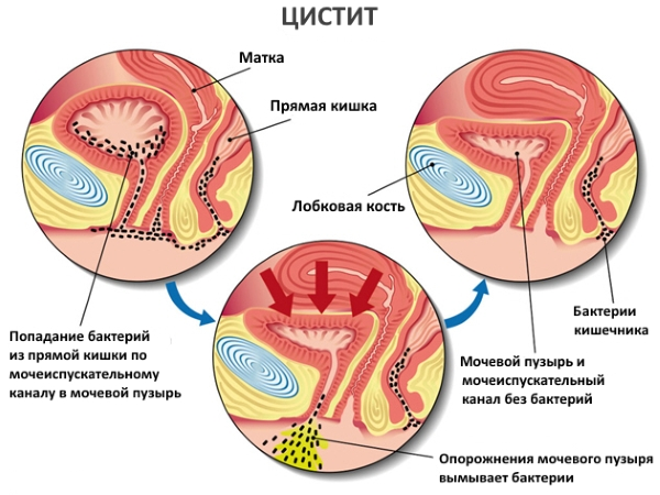 Геморрагический цистит: симптомы и причины