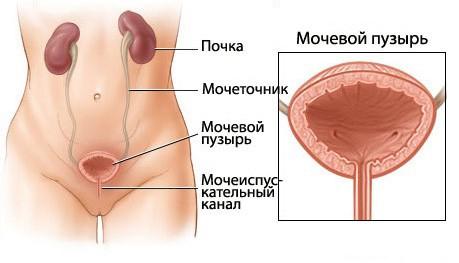 Песок в мочевом пузыре: симптомы и лечение